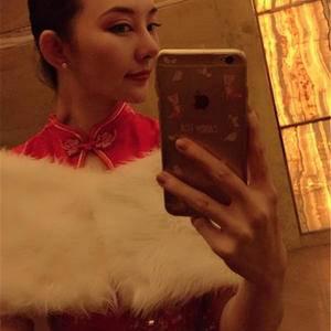 一朵洁白的云北京炫美自体肋软骨鼻综合告别短鼻子术后195天第2页图