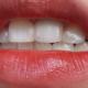 牙齿清洁第45天哈喽 各位悦美的宝宝们,好久不见啊!到年底啦,真是各种忙啊!感觉好久没有跟大家分享我的...