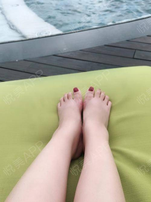大脚骨祛除/矫正。做完大脚骨一个多月了,现在脚除了微微有些肿别的都挺好的,拇趾恢复原位,关节活动起来很灵活,之前切口留下...