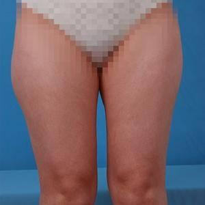 大腿吸脂手术