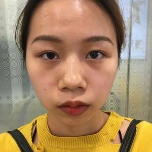 鼻综合整形