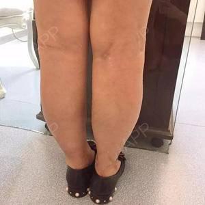 吱吱的瘦腿针