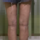哈喽,小仙女们好,时间过的好快,做完吸脂7天了,已经在慢慢消肿,看着腿一天天变瘦,我真的好高...