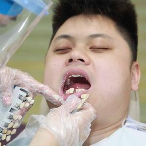 背譵揹拥扌包的种植牙