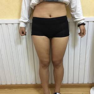 大腿吸脂术后
