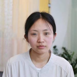 日记本:隆鼻