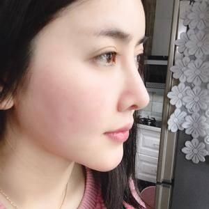 悦Mer_2301146506荣荣的鼻综合术后169天第2页图