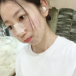 日记本:鼻综合