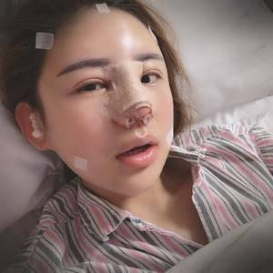 悦Mer_6067163334鼻综合+全脸脂肪填充术后2天第3页图