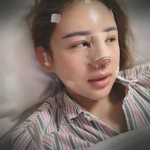 悦Mer_6067163334鼻综合+全脸脂肪填充术后2天第1页图