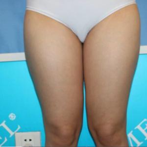 美贝尔  吸脂瘦大腿