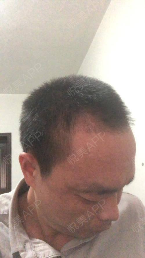 【郑州华山植发】头发现在置换期,掉落的都差不多,看上去很稀疏了,感觉没有之前种植出来好,很担心所以昨天下去去了医院一趟医...