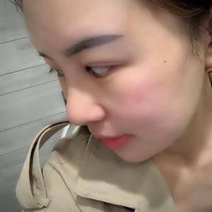 悦Mer_6067163334鼻综合+全脸脂肪填充术后7天第2页图