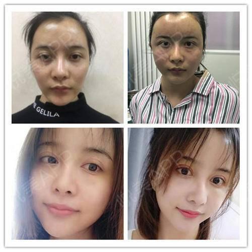 脂肪填充全脸25天让我变成女神啦脸颊的凹陷大部分MM都有,显得憔悴苍老、没有活力,比较病态,而且整体气质下降。那么如何解...