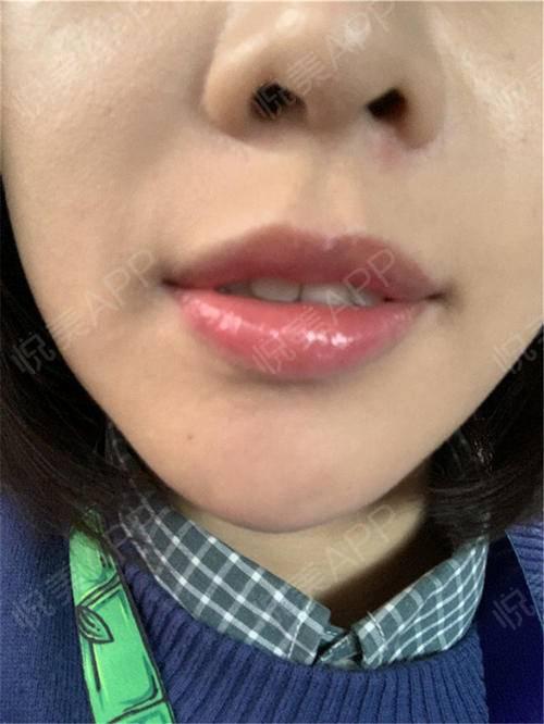 【北京清木厚唇改薄】看大家给我的消息好多呀,我给你们解答一下我知道的丰唇办法,有玻尿酸填充和脂肪填充,像我做的厚唇改薄就...