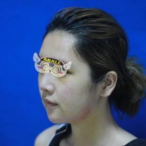 假体硅胶隆鼻手术