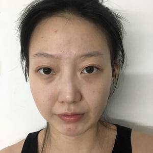 鼻部整形手术