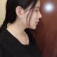 哈喽## 今天跟大家分享一下我的整形经历呗我在上海喜美做的鼻中隔鼻综合和自体脂肪全脸手术。因为开始底子...