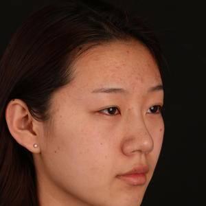 北京美莱切开双眼皮