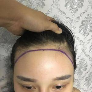 植发手术脂肪填充