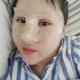 什么都先不说就让大家看一下我手术以前吧,以前在别家医院还做了一个双眼皮的,但是现在看起来效果真的是好...