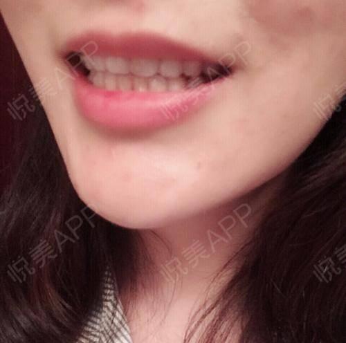 拔牙术后1天_隐形矫正术后1天_牙齿治疗术后1天_牙齿矫正术后1天_牙齿美容术后1天_少女吃火锅分享图片2