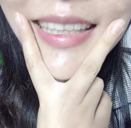 拔牙术后1天_隐形矫正术后1天_牙齿治疗术后1天_牙齿矫正术后1天_牙齿美容术后1天_少女吃火锅分享图片7