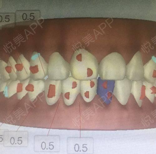 拔牙术后1天_隐形矫正术后1天_牙齿治疗术后1天_牙齿矫正术后1天_牙齿美容术后1天_少女吃火锅分享图片8