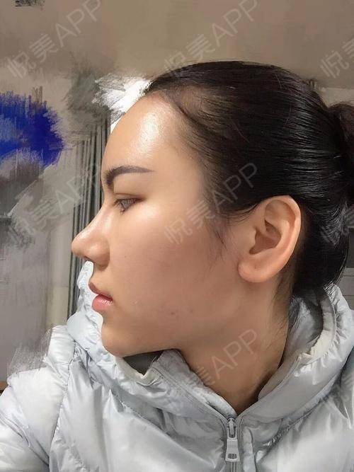 LZ我终于能化着妆出现在大家面前啦,前面那些都不是我哈哈哈~自从拆线后好像恢复得特别快一样,我轻轻捏了一下鼻子,发现手感...