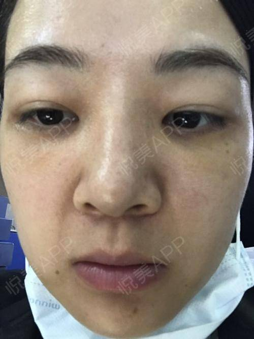 深圳健丽祛眼袋_术后的第2天了,医生嘱咐不要过度的用眼,但还是来和...去眼袋 ...