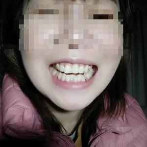 矫正前的拔牙