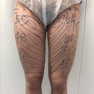 宝丽太吸脂瘦大腿