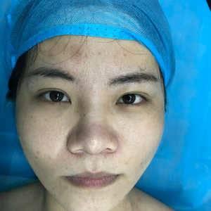 鼻部异物注射取出,鼻部综合整复术(射