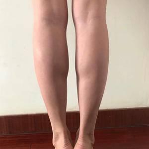 合肥台美丽格瘦腿针
