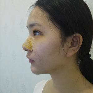 悦Mer_8656818537美贝尔 鼻综合术后4天第3页图