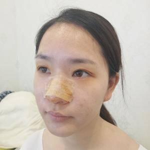 悦Mer_8656818537美贝尔 鼻综合术后4天第1页图