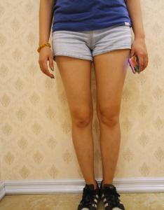 【吸脂案例】带你了解大腿抽脂全过程