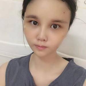 悦Mer_7910543114自体脂肪脸部填充术后3天第1页图