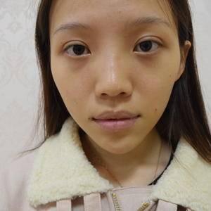 """美丽日记""""6.7""""玻尿酸丰唇"""