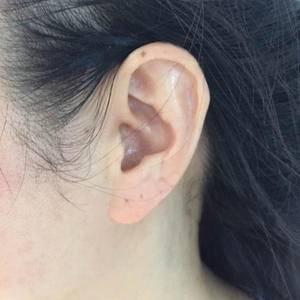 手术丰耳垂