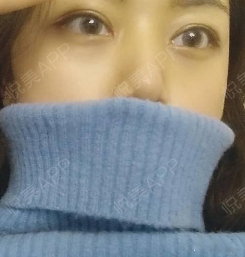 冬天冷了,眼睛恢复的基本已经算是非常好了!能化妆了,画完妆像混血一样!