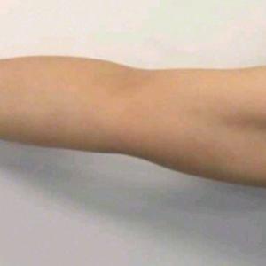 运动减肥又太懒,只能通过线雕瘦手臂