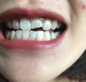 补牙补牙。