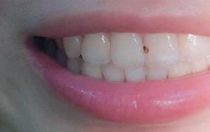 补牙!!!