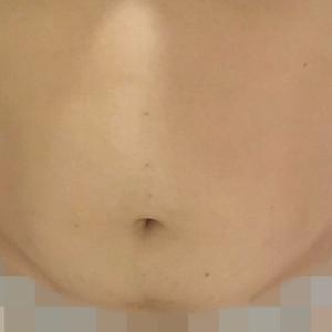 腹部穴位埋线减肥