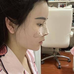 SmallLiao鼻修复整形术后5天第1页图