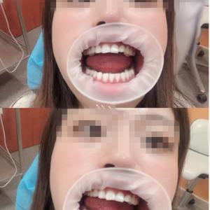 种植牙检查