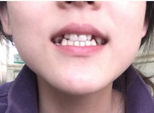牙齿 种植