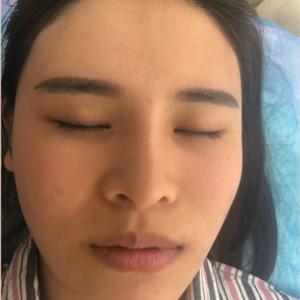 M唇成形术 宝丽太吸脂瘦脸