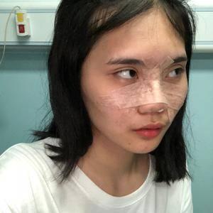鼻部整形-假体隆鼻